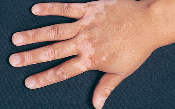 Ayurvedic Treatment For Leucoderma in Hyderabad